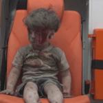 5-latek przeżył bombardowanie. Dramat dzieci w Syrii .. dramat wojny [VIDEO]