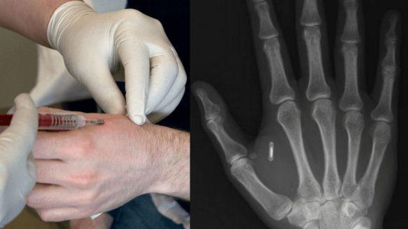 Czip między kciukiem a palcem wskazującym. Czy górnicy będą pierwsi
