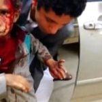 Arabia Saudyjska stoi za morderstwem 43 dzieci w Jemenie.