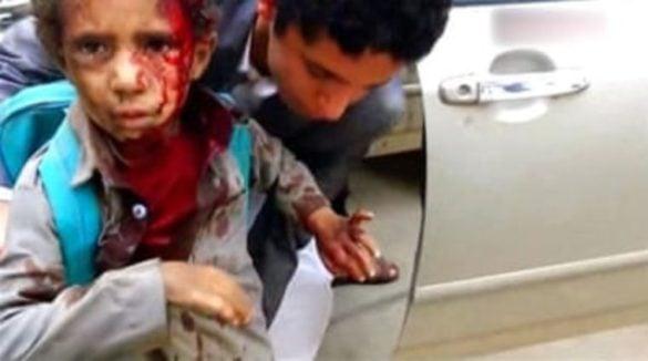 Arabia Saudyjska stoi za morderstwem 43 dzieci w Jemenie