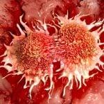 PLAGA 1 – Rak – system zarabiania i przyczyny.